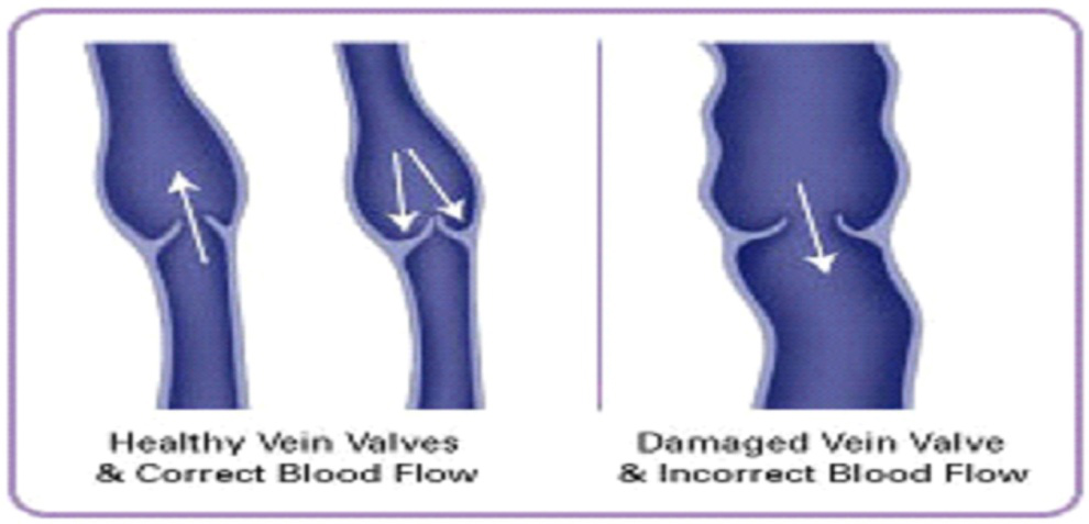 Venous Anatomy Center For Venous Disease